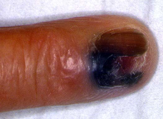 Dermatologie m lanome ungu al ongle doigt - Gland qui pele ...