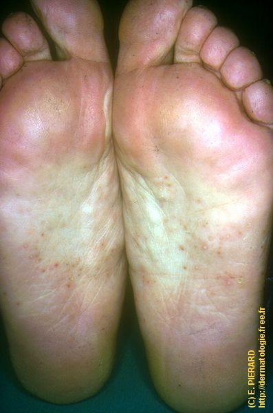 Eczema Pictures: What Atopic Dermatitis Looks Like, Cradle ...