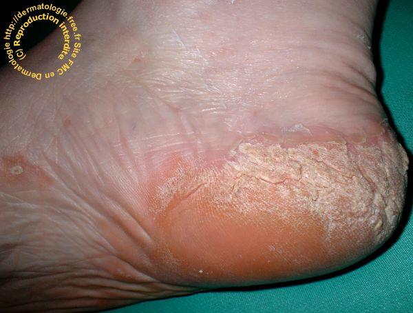 psoriasis aux pieds