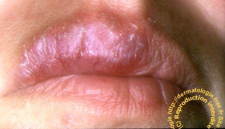 champignon sur les lèvres de la bouche