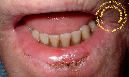commissure des lèvres gercées
