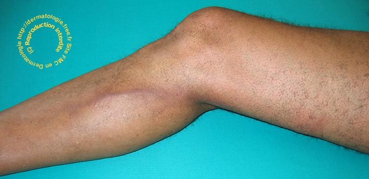 staphylocoque doré symptômes