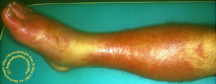 soigner plaie variqueuse