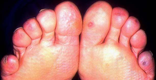 engelures pieds traitement
