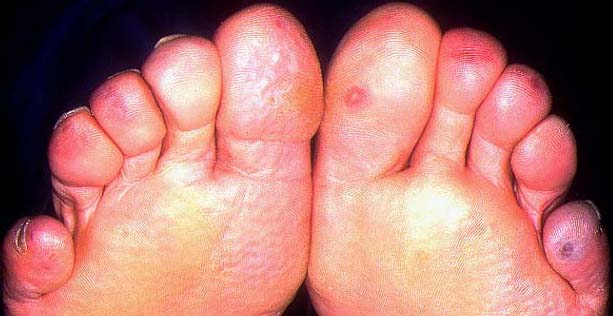 soigner les engelures aux pieds
