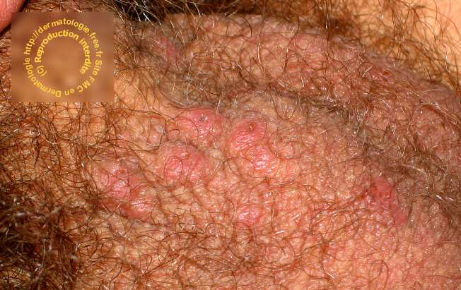 nodules scabieux photos