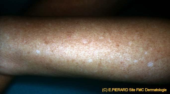DSAP - Disseminated Superficial Actinic Porokeratoses