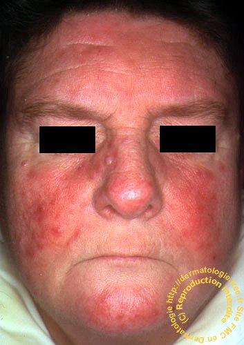 Le psoriasis au traitement de lhépatite avec
